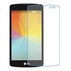 LG F60 מגן מסך נאנו זכוכית 9H יחידה אחת סקרין מוביל